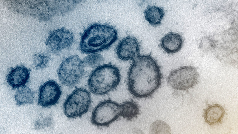 This transmission electron microscope image shows SARS-CoV-2—also known as 2019-nCoV, the virus that causes COVID-19—isolated from a patient in the U.S. Virus particles are shown emerging from the surface of cells cultured in the lab. The spikes on the outer edge of the virus particles give coronaviruses their name, crown-like. Image captured and colorized at NIAID's Rocky Mountain Laboratories (RML) in Hamilton, Montana. (Courtesy: NIAID)
