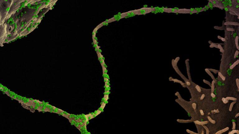 SARS-CoV-2 virus